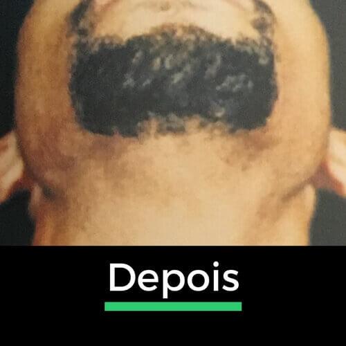 Depois da depilação a laser